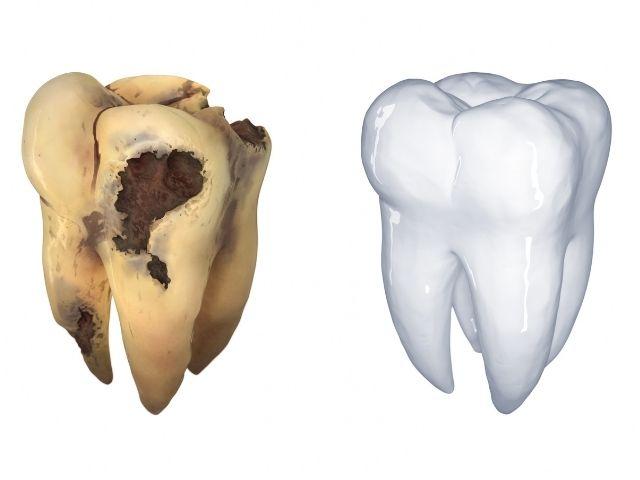caused della carie ml dental