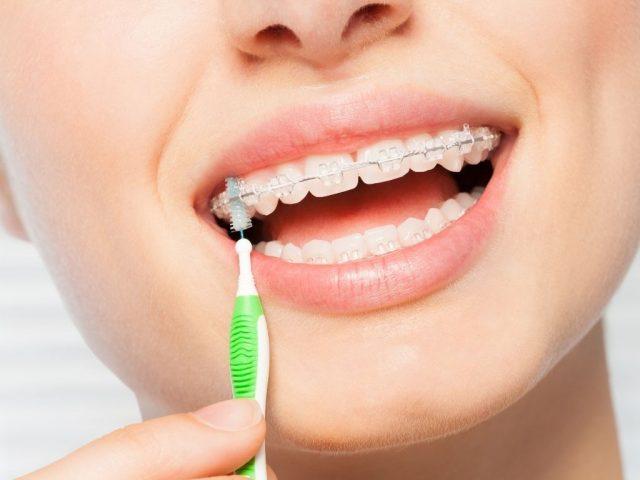 apparecchio denti ml dental