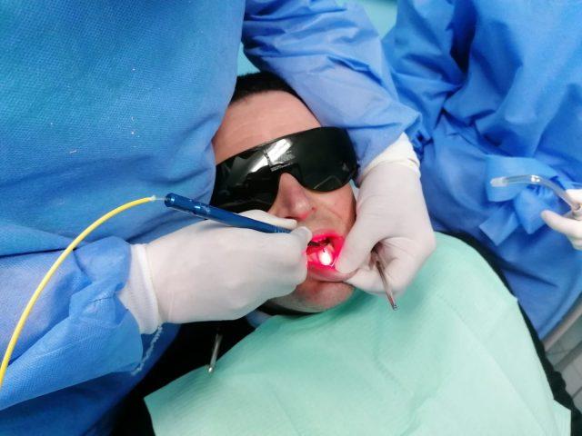 chirurgia laser