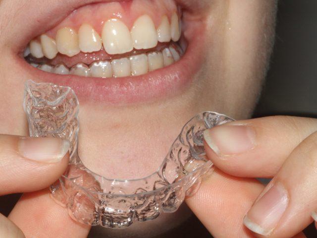 ortodonzia invisibile
